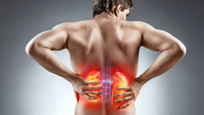What is kidney stone pain like, Kidney stone, 7 Quick Guide To Know What is kidney stone pain like, kidneys, COVID-19, types of kidney stones, location of kidneys, what is a kidney stone, kidney stone, kidney health, kidney disease, alternative medicine, Ayurveda, urology, alternative treatment, healthy lifestyle, kidney stone removal, diet plan, kidney disease symptoms,